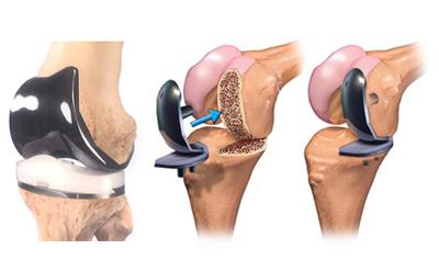 Knee Replacement Surgery Cape West Coast Hospital | Dr Naudé